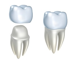 Dental Crown in Calgary NW